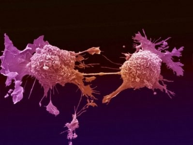 What Is Cancer? Causes Of Cancer? A Shocking Truth... (video)